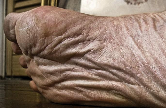 Eric G. Weiner, </span><span><em>My Foot</em>, </span><span>2008