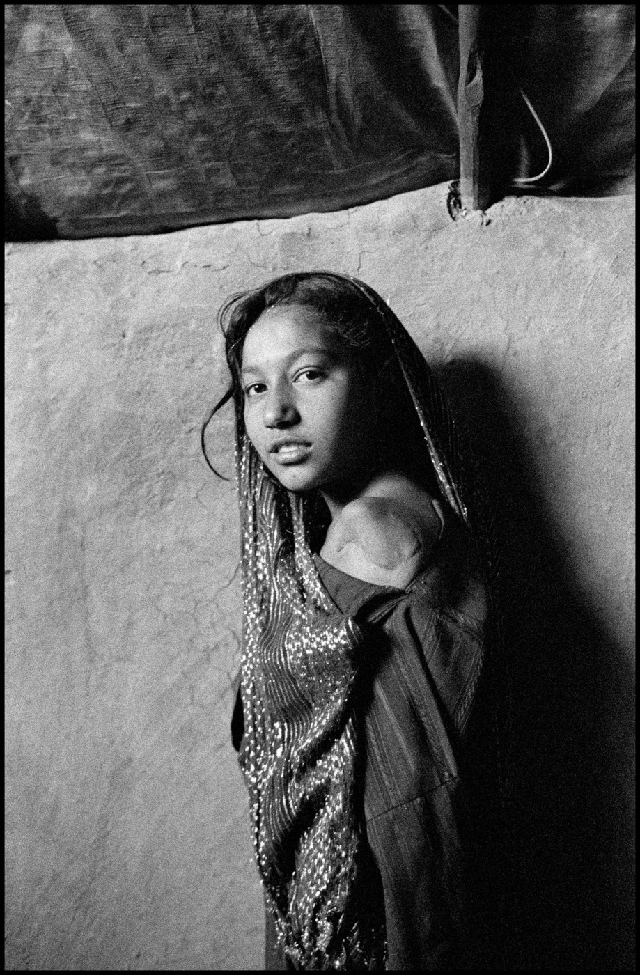 Larry Towell, </span><span><em>Ten year old Gul Juma lost her arm as well as relatives during the bombing of Helmand Province</em>, </span><span>&lt;em&gt;Charahi Qambar Refugee Camp, Kabul, Afghanistan &lt;/em&gt; © Larry Towell/Magnum Photos